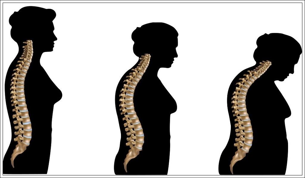 Osteoporoz önlenebilirmi